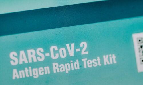 Brzi antigenski test
